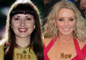 Carol Vorderman's before and after look,