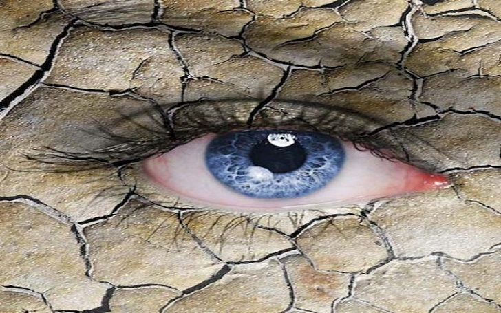 What is Dry Eye? Home Remedies for the Prevention of Dry Eyes: Causes, Symptoms and Diagnosis