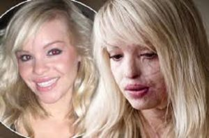Katie Piper face before acid attack