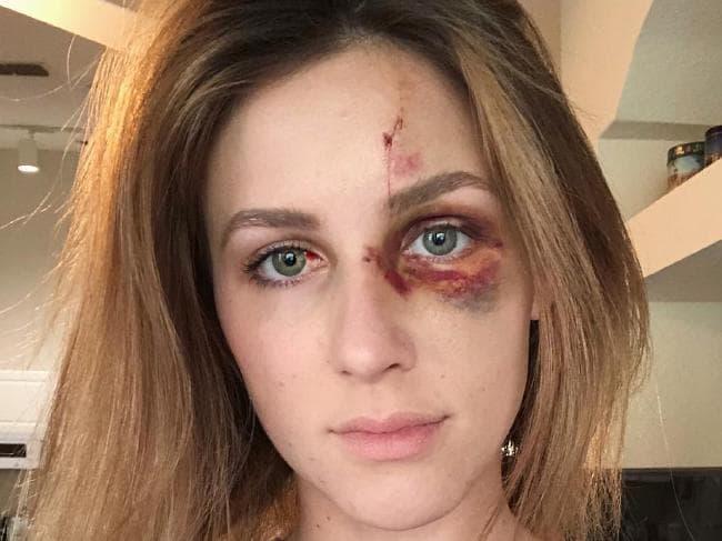 Melissa Gentz wiki, bio, age, height, boyfriend, Eric Bretz, domestic violence